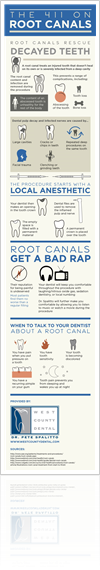 Root Canals Infographic